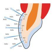 opal-H2O2