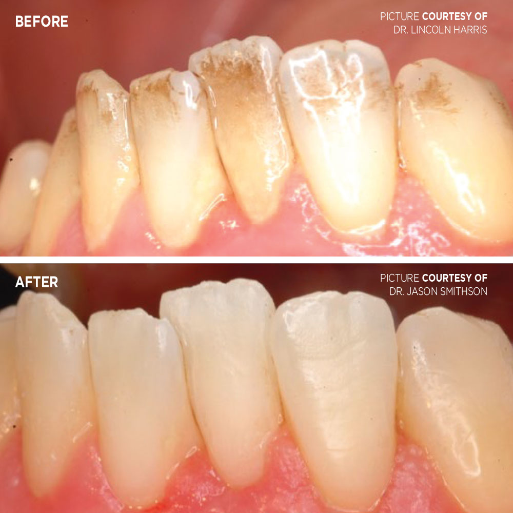 Cleaning with air abrasion case - Optident