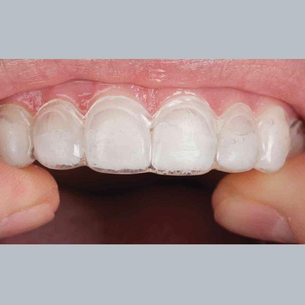 Tooth Whitening Trays in Place