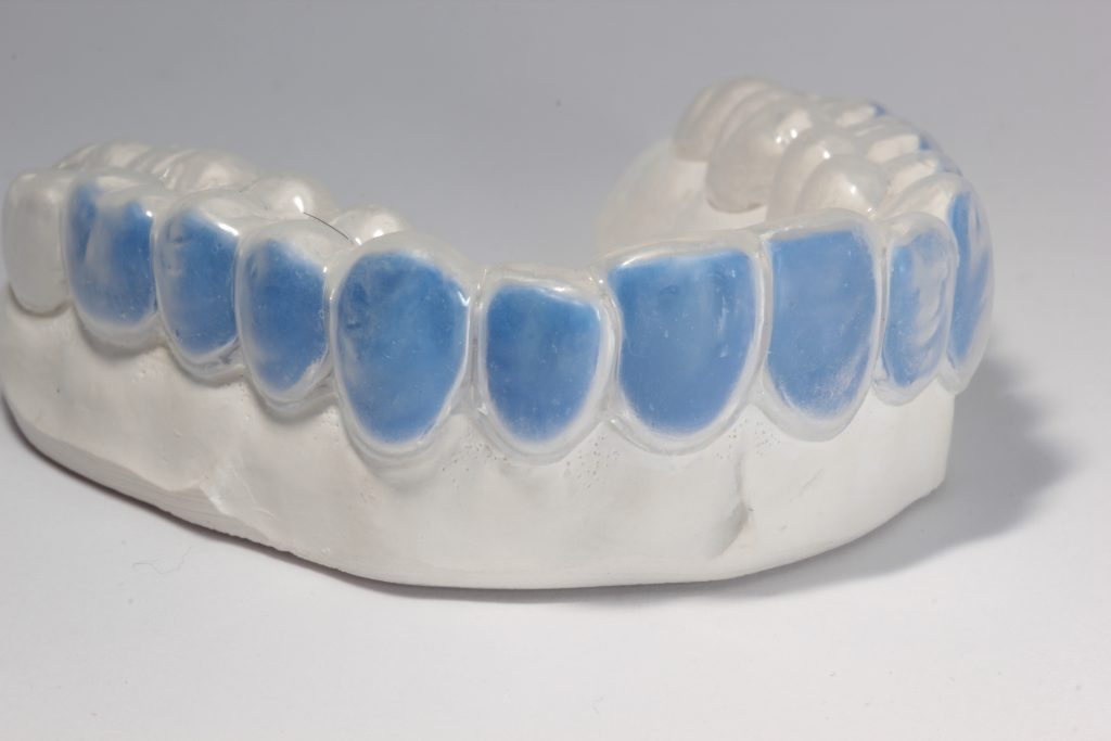 Labline Custom Whitening Trays
